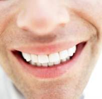 Fixed Teeth In A Day – Case Study