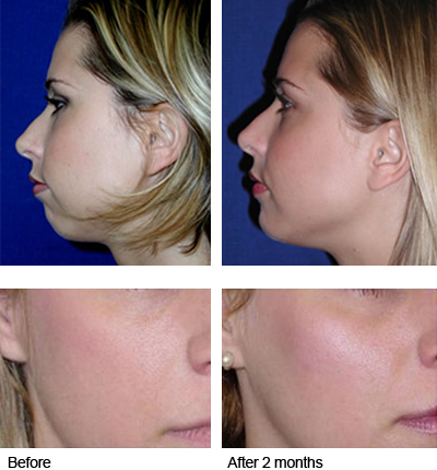 how to become a dermal clinician