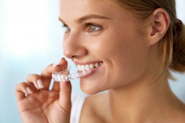 Clear braces at Cherrybank Dental Spa