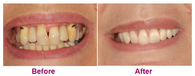 Case_4_Fixed_Teeth_In_A_Day_All_On_4