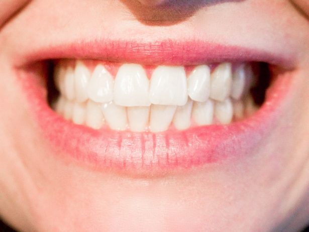 Oral Health: More Important Than You May Think