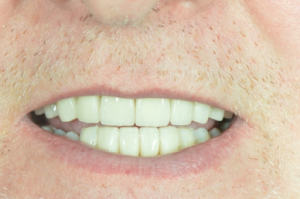 Cherrybank Dental Transformations: Mr B