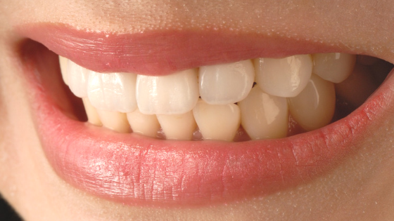Top 5 Myths About Tooth Whitening
