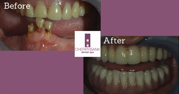 Cherrybank Dental Transformations, Jay MacFarlane – Fixed Teeth in a Day (All On 4)